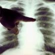 Újpesti Szakorvosi Rendelőintézet - Tüdőszűrő